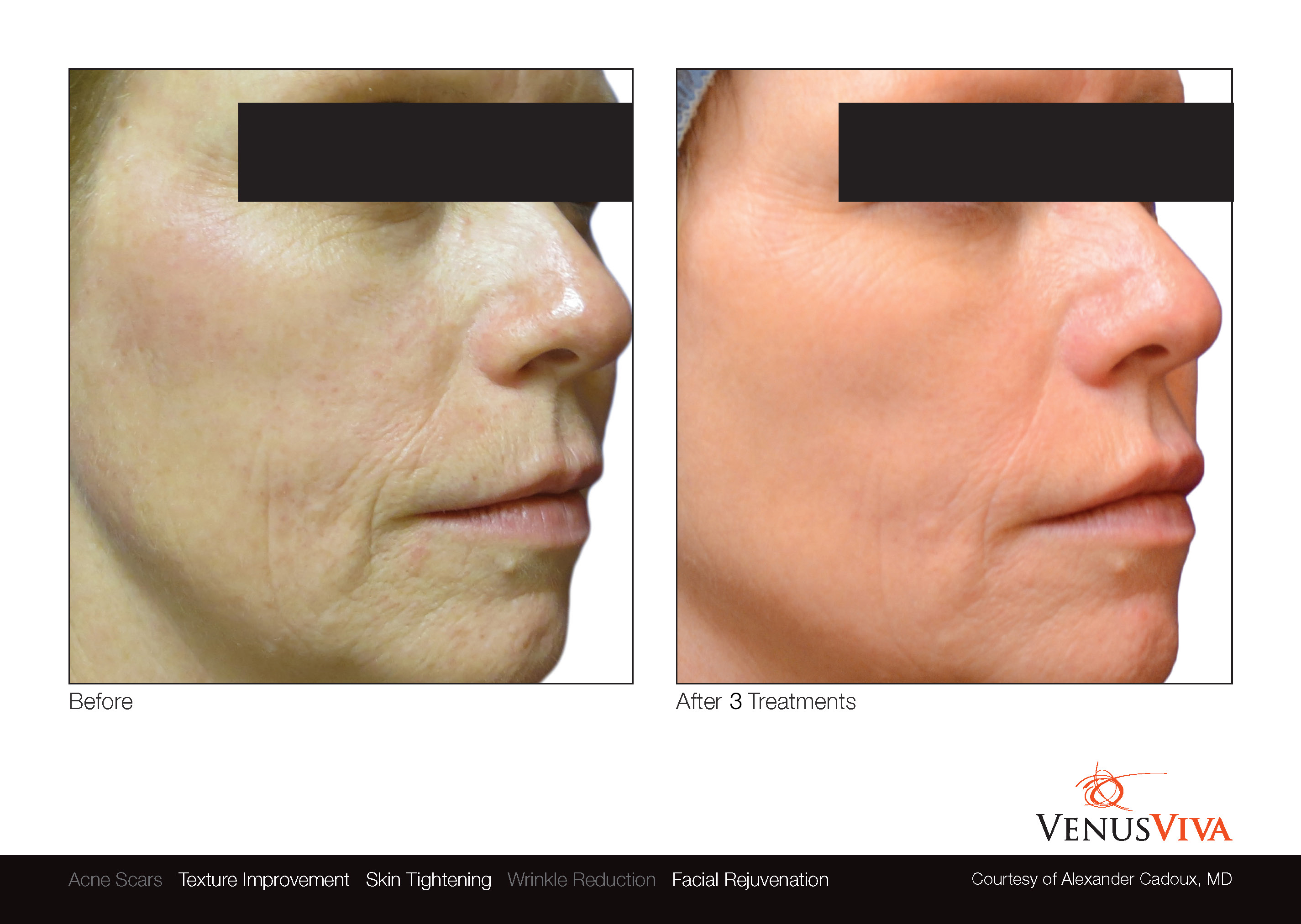 VenusViva Treatments to reverse anti-aging and reduce scarring.