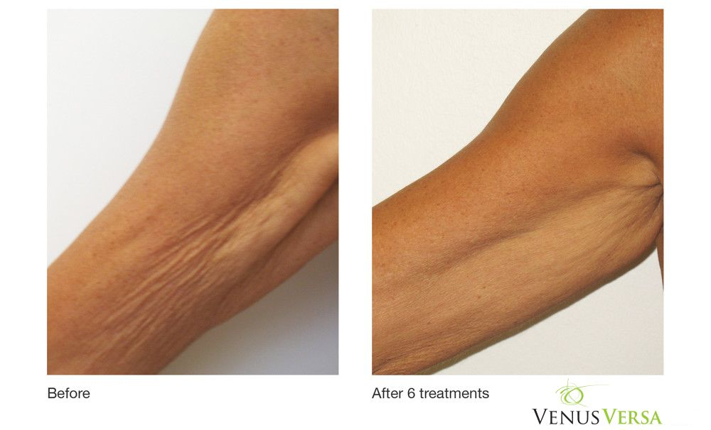 MCI offers Venus Versa treatments